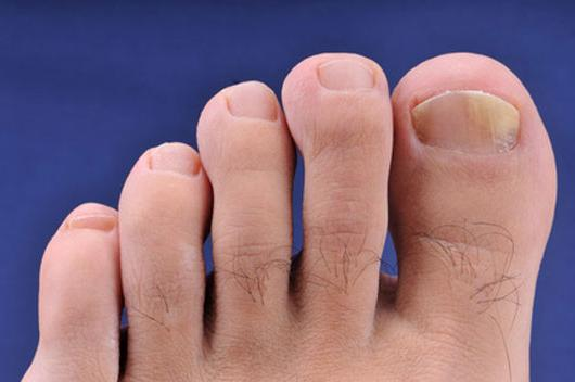 Врач грибка ног