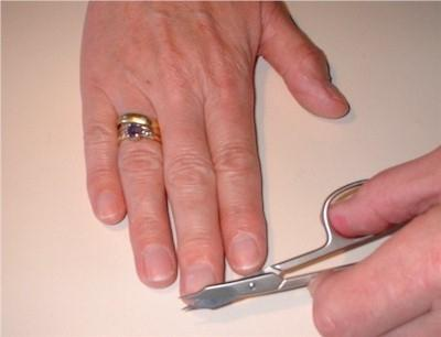 нарывает палец на руке лечение