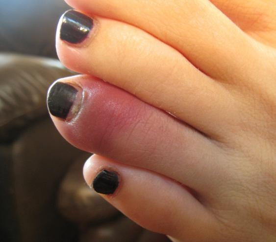 перелом большого пальца ноги лечение