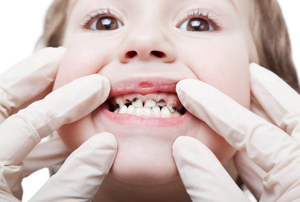 количество молочных зубов у человека