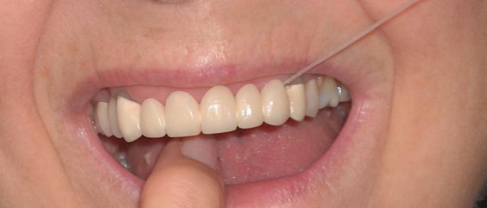 зубные мосты металлические