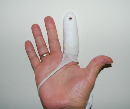 как сломать палец