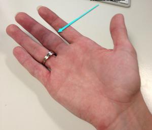 как быстро сломать палец
