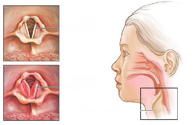 Болезни тазобедренного сустава лечение народными средствами