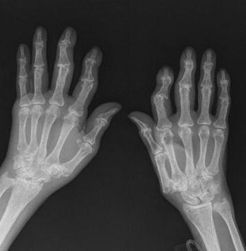 Артроз кистей рук как и чем его лечить
