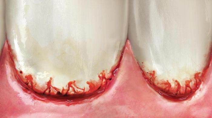 зубные пасты лечебные