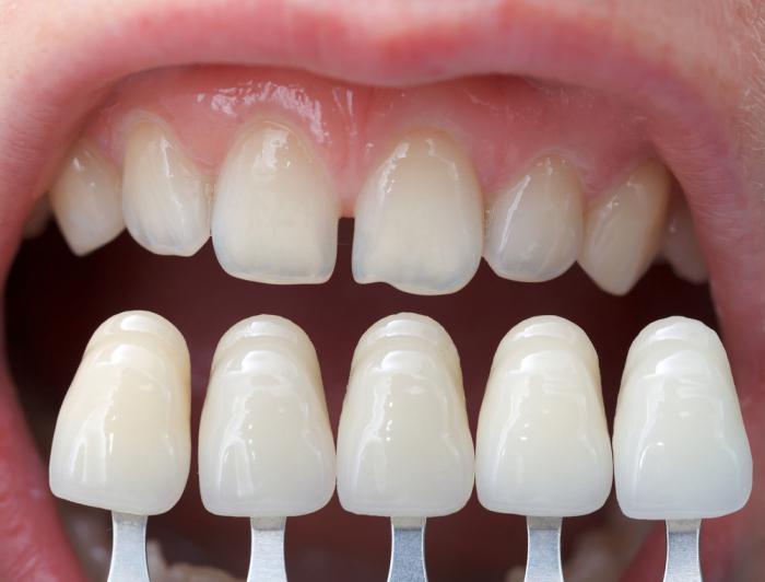 Как выровнять зубы без брекетов, способ выровнять зубы 9