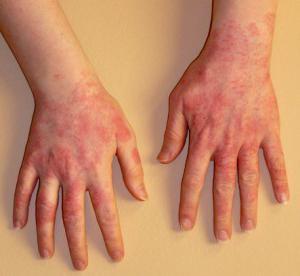 Перекрестная аллергия что это такое