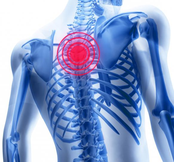 Радикулит грудного отдела позвоночника лечение