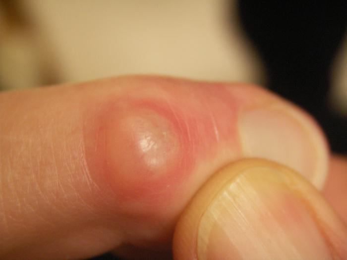 Шипица на пальце руки фото