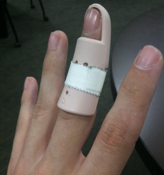 Большой мозоль на сустав пальца руки