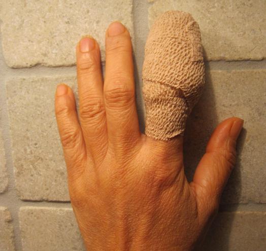 На пальцах рук появились наросты как мозоли 3