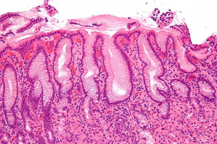 Симптом эрозивного гастрита. Обострение эрозивного гастрита: симптомы, лечение