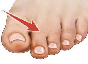 Сросшиеся пальцы на ногах: причины и лечение
