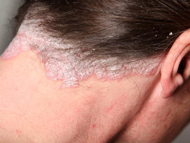 Негормональная дерматотропная мазь Нафтадерм при псориазе