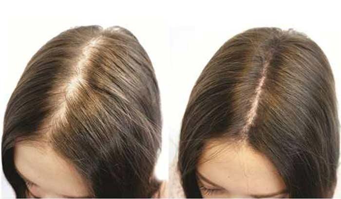 Мытье волос содой: отзывы, эффективные рецепты, польза и вред