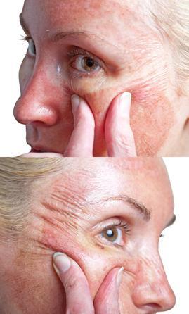 Чем увлажнить верхние слои кожи от морщин