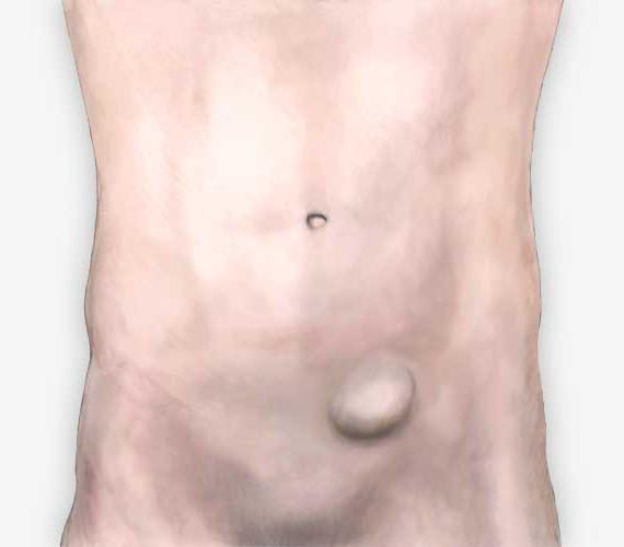 операция грыжа