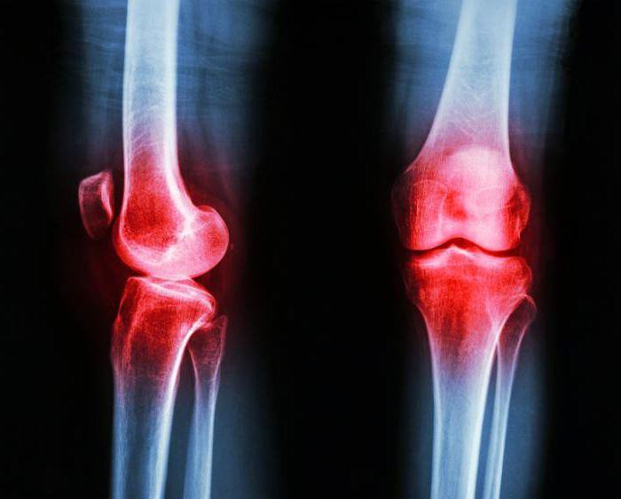 Показания к замене коленного сустава
