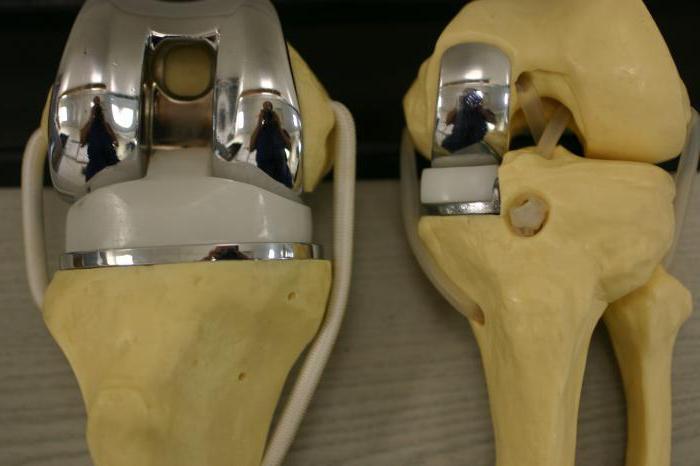 Операция по замене сустава