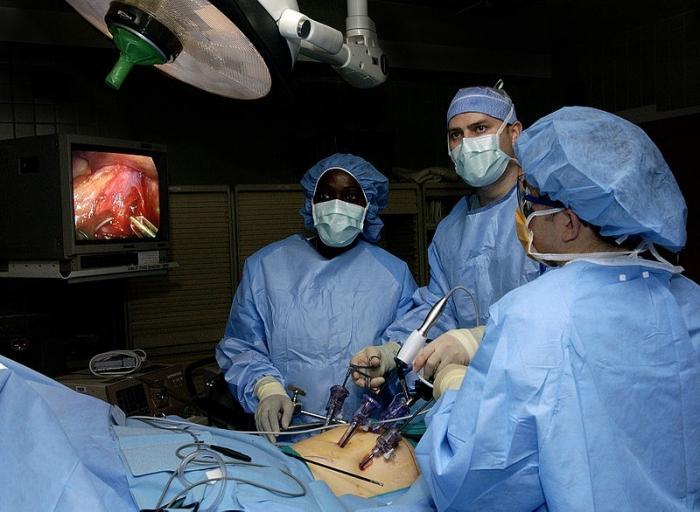 лапароскопия как проходит операция видео