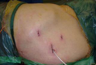 Щадящая операция - лапароскопия