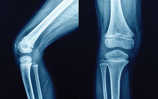 Ревматизм суставов: симптомы и методы лечения
