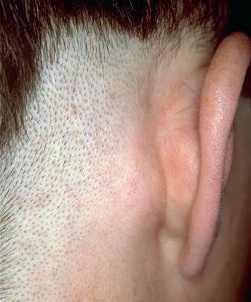 у ребенка за ухом шишка фото