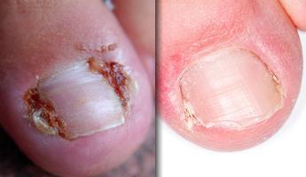 сахарный диабет и изменение ногтя на ноге