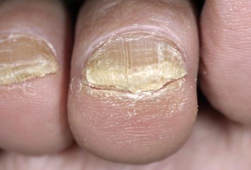 Противогрибковое средство для ногтей микозан