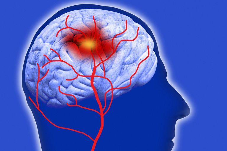 Таламический синдром: что это такое, лечение, прогноз