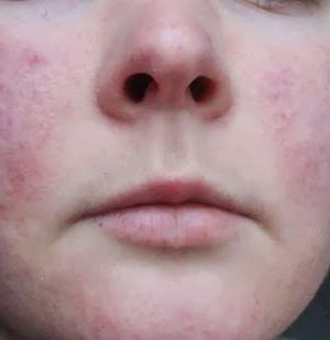 Что представляет собой пероральный дерматит?