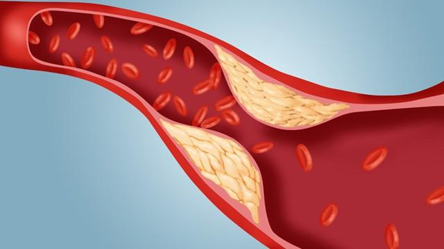 пониженный холестерин в крови что это значит