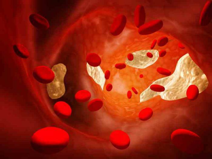 препараты от повышенного холестерина цена