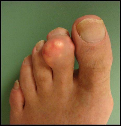 Артрит большого пальца руки лечение Суставы
