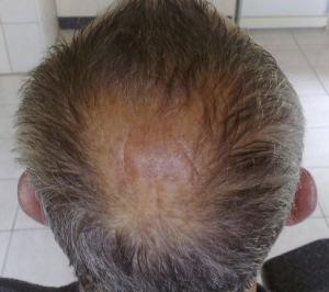 Сколько держать по времени маску с корицей для волос