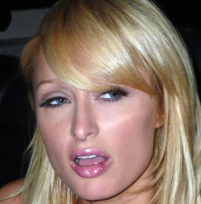 герпес на губе во время беременности ацикловир