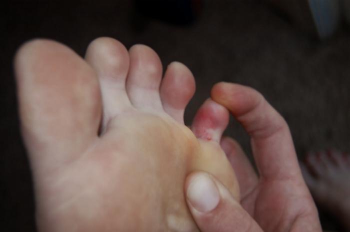 Варикоз ног лечение мазями