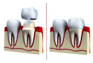 коронки на зубы какие лучше