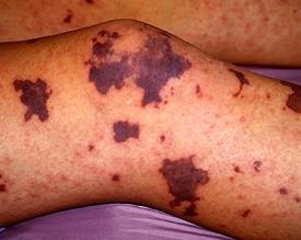 Симптомы менингита. Лечение и профилактика заболевания