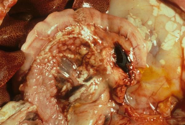 некроз поджелудочной железы