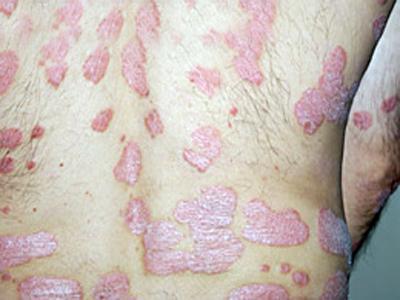грибковая аллергия фото