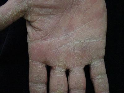 аллергия на руках в виде пузырьков фото