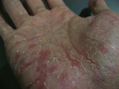 Как лечить туберкулезный спондилит