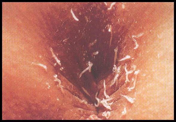 глисты кале у человека видео