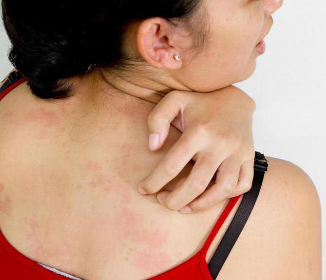 аллергия на солнце симптомы у взрослых