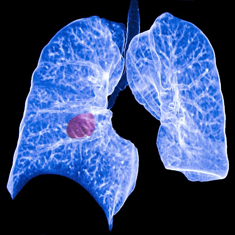 патологии легких