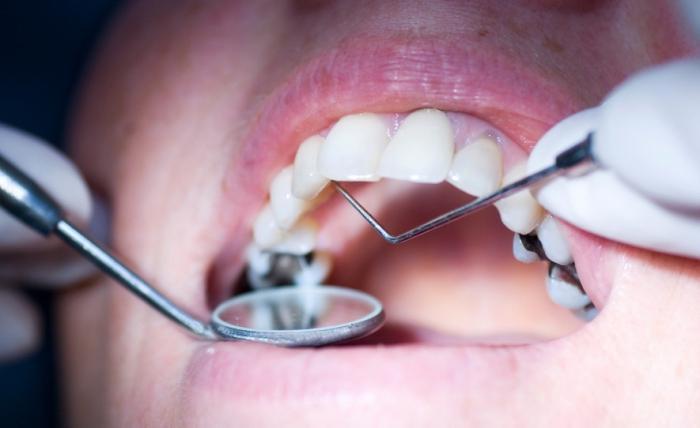 Лечения зубов лечение озоном 98