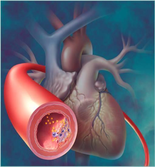 лпвп общий холестерин повышены