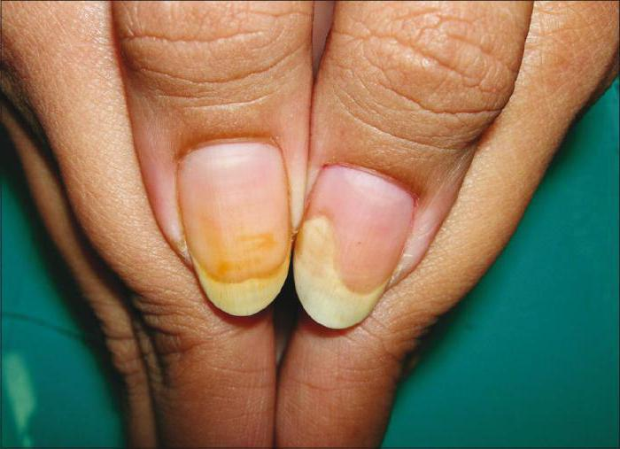 аллергия от гель лака фото